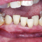 【重度】重度の若年性歯周病による審美治療
