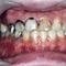咬合治療を中心としたインプラント技術・審美歯科・歯周病治療