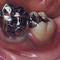 保険治療の虫歯治療例