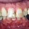 咬合治療を中心としたインプラント治療・審美治療・歯周治療