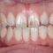 短期で前歯を治せますか?