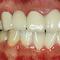 歯周病技術+審美技術+複合治療