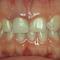 歯が小さいこと、左右非対称な歯の形がコンプレックスです。