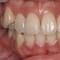 矯正技術しても、歯の1つ1つが大きく目立つかな?