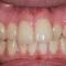 短期間で歯並びを変えたい!!
