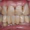 【軽度】前歯の歯周病を審美的に治せますか?