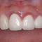 【軽度】以前の歯科医院にて「歯磨きをしなさい」と言われ続けましたが、本当にそれだけで治りますか?