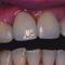 【軽度】審美歯科を3年前に受けたのですが、前歯が揺れて怖いのですが・・・