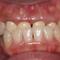 【中度】前歯と奥歯の歯周病の改善がありません!!