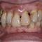 【中度】インプラントは怖いので入れ歯で治せますか?