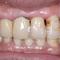 【重度】各所の歯に接着剤にて固定の跡が見えます。