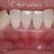 【軽度】どんどん歯ぐきが腫れて膿もでます