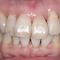6・12 前歯セラミック治療集