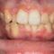 【乱ぐい】顎関節症と歯並びが気になる