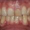 【乱ぐい】四国からご紹介で歯科衛生士が来院