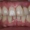 【乱ぐい】歯周病もあるのですが、矯正できますか?