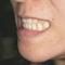 【受け口】受け口を治すと出っ歯になりませんか?