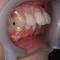 【出っ歯】時間短縮を目指し、セラミック治療による矯正治療