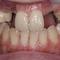 審美インプラントVol.01歯の動揺があり大丈夫ですか?