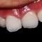 歯ぐきの黒ずみ改善集