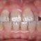 非抜歯による部分矯正!かみ合わせもさらに安定できました!