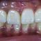どれが天然歯?どれがセラミック?