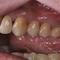 ブリッジです。どの歯の歯根が無いでしょう。