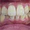 【左右非対称】歯を抜かない矯正治療