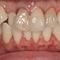軽度の歯肉炎で歯ぐきも腫れています!歯並びもキレイにしたい!
