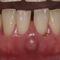 【軽度】歯ぐきが腫れて今後が心配です。抜歯でインプラントとも言われたのですが・・・