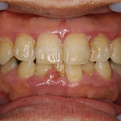 【中度】奥歯も含め中度の歯周病!特に下の前歯はもう大変!