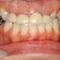 【軽度】歯と歯ぐきのマネージメント