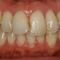 セラミック治療によって歯列を変えました!