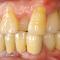 審美インプラントVol.16上下の奥歯がインプラントの場合