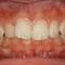 【出っ歯】下の前歯が見えないぐらい出っ歯になってる顎関節症も治る