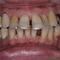【中度】歯周病を完全に止めたい!そして美しく!してほしいPart1