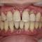 【重度】歯周病グラグラ危険!触ると抜ける!型取りすら出来ない!Part2