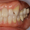 【乱ぐい】審美セラミックによる歯列矯正