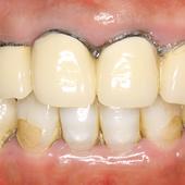 【軽度】歯ぐきも黒いラインが出た被せ(クラウン)も治したい
