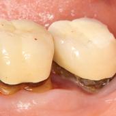 【軽度】奥歯の虫歯と歯周病の併発