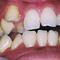 【乱ぐい】先天性欠損で下の歯は1本足りませんでした。