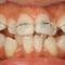 【出っ歯・乱ぐい】成長期すぎての非抜歯矯正治療