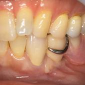 【中度】入れ歯は痛い上、被せ(クラウン)が取れてアゴも不安定に。
