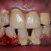 【重症の軽度】キレイな歯ぐきと美しい歯を取り戻すことが出来るのか?