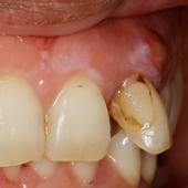 【中度】1本だけ酷い歯周病、歯槽膿漏に!!
