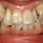 【軽度】抜歯して治すのは簡単!でも残せる技術があれば