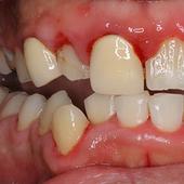 【軽度】歯ぐきが腫れて、爛れて、痛くて、 自分ではどうしようもないのですが!!