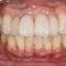 【過去を振り返る】歯周病になり、歯がグラグラだった時から12年後の現在、一縷の望み、叶う