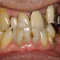 「長年の夢」...若い時から常に歯が悪かった56歳にして一念発起!! 歯周病重症軽度