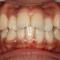 上と下の歯の数がちがう!矯正治療ですると噛み合わせが悪くなる